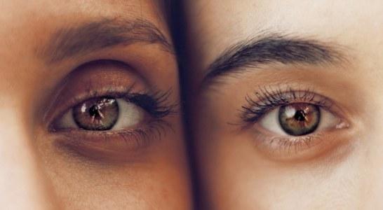 איך הרמת עפעפיים תשפיע על המראה שלך