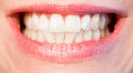 איך להשיג חיוך מושלם בזמן קצר